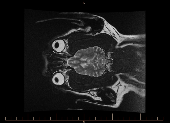 MRI BRAIN 0001
